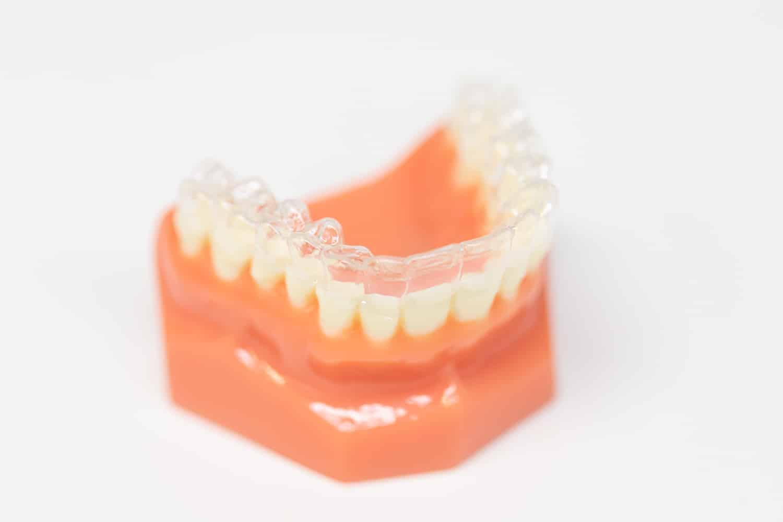 Schaumodell eines Zahnbogens mit einer transparenten Invisalgin Schiene.