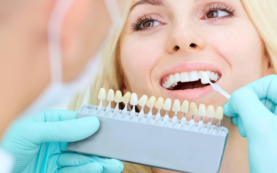 Bleaching mit ZOOM! 2 – Zahnaufhellung bei ihrem Zahnarzt in Klosterneuburg